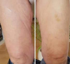 До и После применения3D BODYLIFT