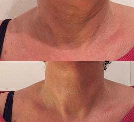 декольте до и после применения крема