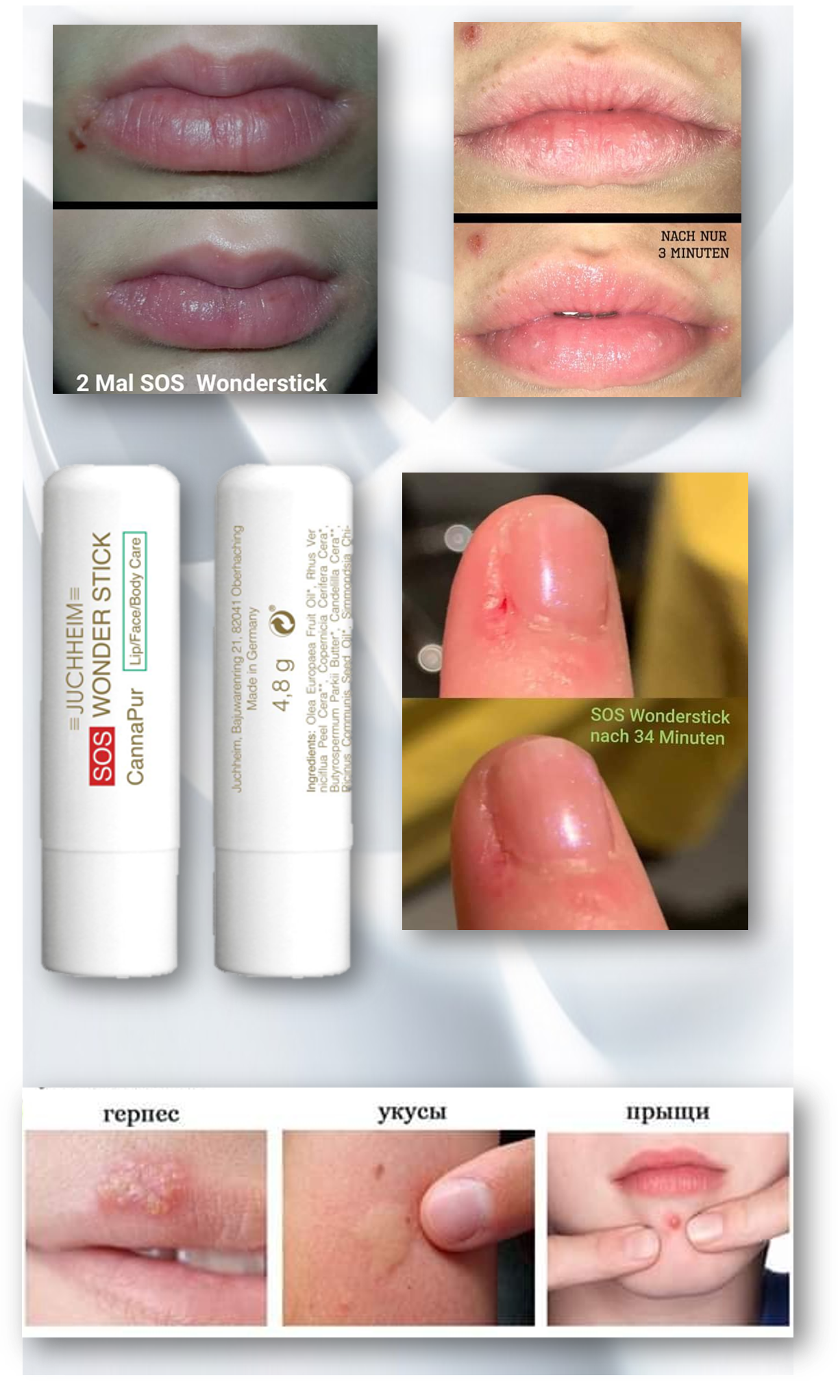 SOS Стик для воспаленных губ