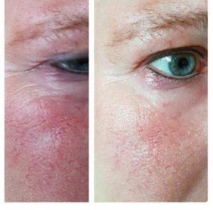 Розацея до и после применения крема